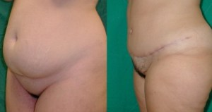 cheap abdominoplasty,medical turism in greece
