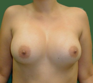 breast enlargment,breast augmentation in greece,medical turism,cheap mammoplasty