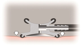 Utilizarea modului diafragma (pentru frecvente inalte)
