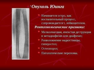 Новообразования в подвздошной кости эностоз остеоид остеома гемангиома энхондрома остеохондрома