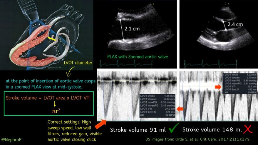 Measuring accurate cardiac output: Use zoomed PLAX view to measure LVOT diameter and ensure correct Doppler settings