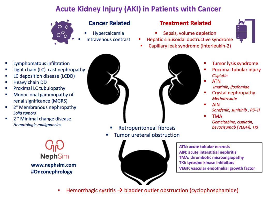 AKI in Cancer