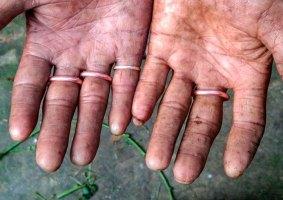 As pessoas sem impressões digitais de Bangladesh