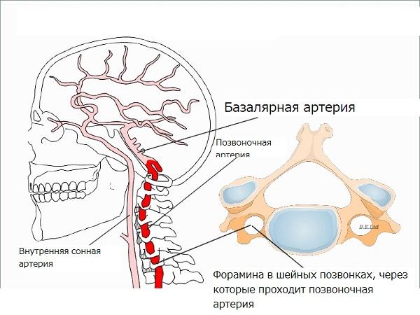 Диаметр позвоночной артерии в норме