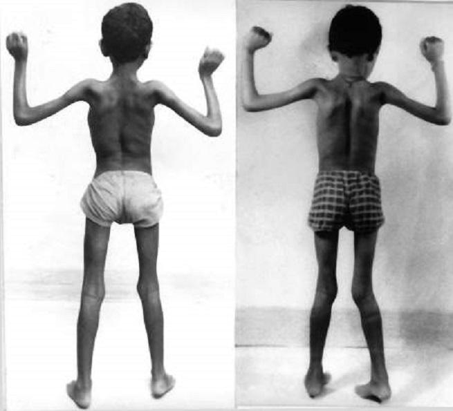 Первичная мышечная дистрофия