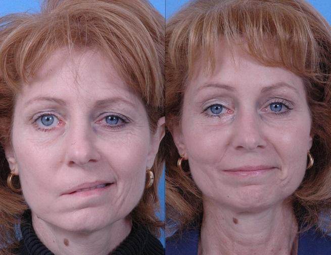 Простужен лицевой нерв симптомы