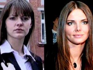 Лиза Боярская до и после ринопластики