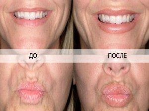До и после накачивания губ