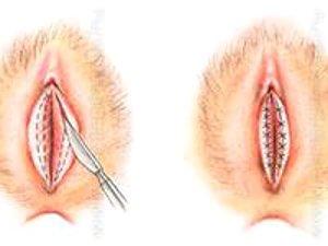 Фото-схема пластики по уменьшению половых губ