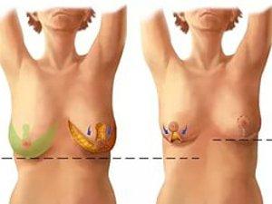 Результаты уменьшения размера бюста