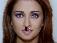 операция заячья губа