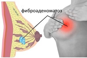 Диффузный фиброаденоматоз молочных желез: что это такое?