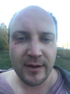 В Тольятти избили борца со строительством мусорного полигона