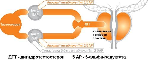 Существуют два основных препарата этой группы: финастерид и дутастерид (торговое название - аводарт)