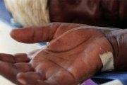 Angola : La fièvre jaune fait 99 morts en deux mois