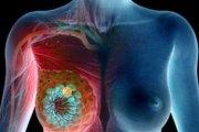 Faisons attention : vous en buvez tous les jours sans savoir que vous risquez un cancer du sein