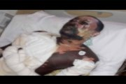 Sénégal: Elle verse de l'huile bouillante sur son mari