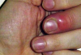 Santé : Comment finir avec le panaris ?
