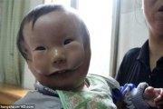 Une malformation rare dédouble le visage de cet enfant (photos)