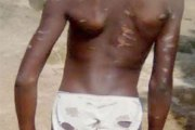 Nigéria / Un homme bat sa fille de ménage âgée de 10 ans et met le sel et le poivre dans ses plaies