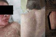 Pour éclaircir sa peau et grossir ses fesses, elle s'injecte des produits et trouve la mort