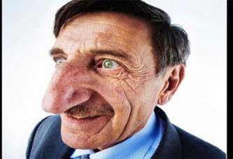 Découvrez en photos Mehmet Özyürek, l'homme avec le plus long nez du monde