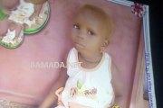 Mali: une fillette albinos de 5 ans tuée et amputée de son cerveau