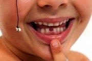 Les dents de lait : Ne les jetez pas elles peuvent sauver votre enfant