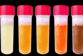Voici ce que la couleur de votre urine révèle sur votre état de santé