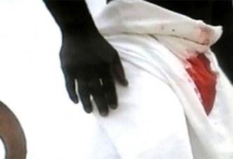 Sénégal: Elle mord l'appareil de son mari parce qu'il…