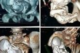 Un fœtus calcifié âgé de 30 ans retrouvé dans l'utérus d'une femme de 73 ans!