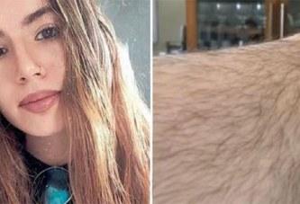 Lynchée sur les réseaux sociaux parce qu'elle refuse de se raser les jambes
