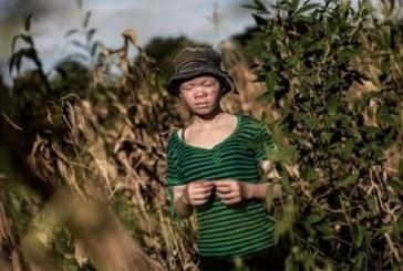 Malawi-crime rituel: 3 personnes condamnées à mort pour le meurtre d'un albinos