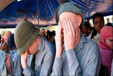 6 choses à savoir sur le meurtre rituel des albinos dans certaines régions d'Afrique