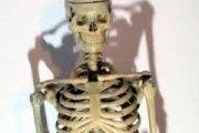Soudan : découverte du squelette d'un homme atteint d'un cancer il y a 3200 ans !
