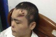 Un chinois défiguré se fait reconstruire un nez sur le front