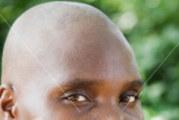 Gaoua : Le mystère des filles aux têtes rasées