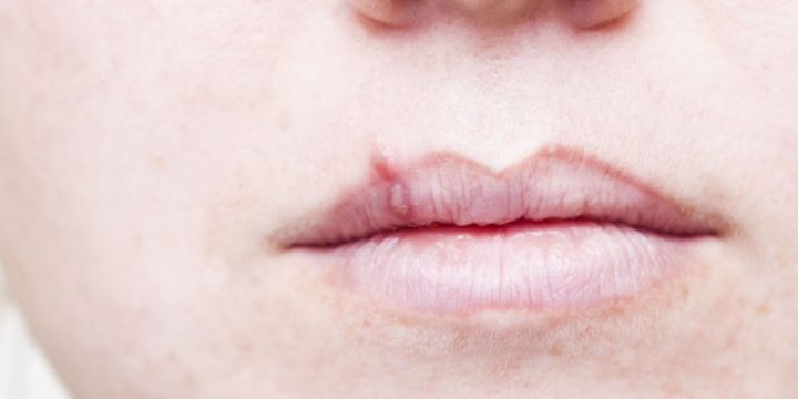 HELP! COLD SORE/HERPES QUESTION! 10 PTS TO BEST ANSWER!? 1