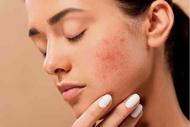 Acne solution with Aloe vera gel overnight