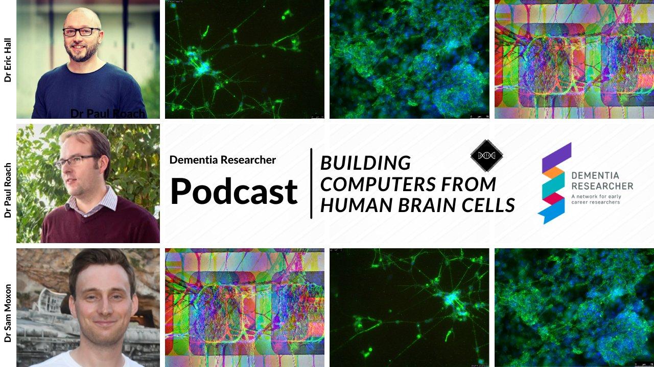 Dementia Researcher NIHR Podcast
