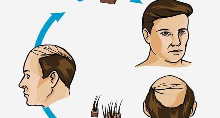 Dermatologists must learn and exercise adequate precaution from the death of Mumbai Based Hair Transplantation Patient