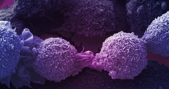 Precision drugs could unmask cancers to the immune system and boost the effects of immunotherapy