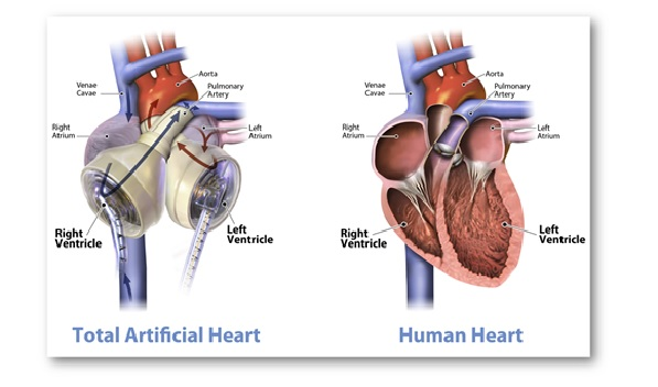 Carmat Total Artificial Heart (C-TAH) approval by the European Commission: Current Medical Trends