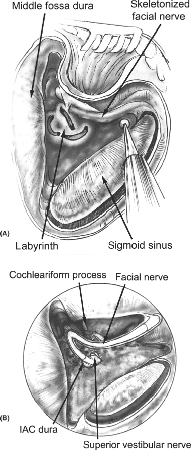 Acute Bony Decompression of the Optic and Facial Nerves
