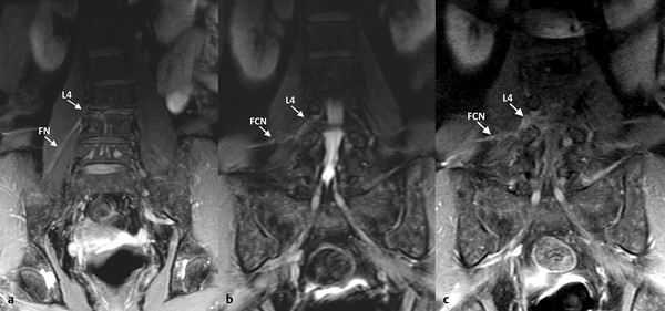 Nerve entrapment. Fifty-eight-year-old woman with left lumbar scoliosis and degenerative changes at L3–L4 level. (a, b) Coronal fat-saturated proton density weighted image. Thickening and high signal