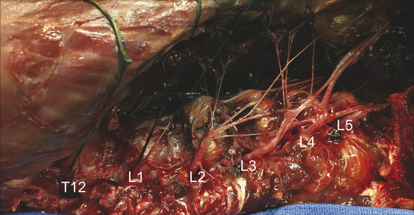 Right-sided, lateral approach to the lumbar spine. The psoas major has been retracted anteriorly to illustrate the many branches of the lumbar plexus. Labeled are the ventral rami of T12–L5. Note how