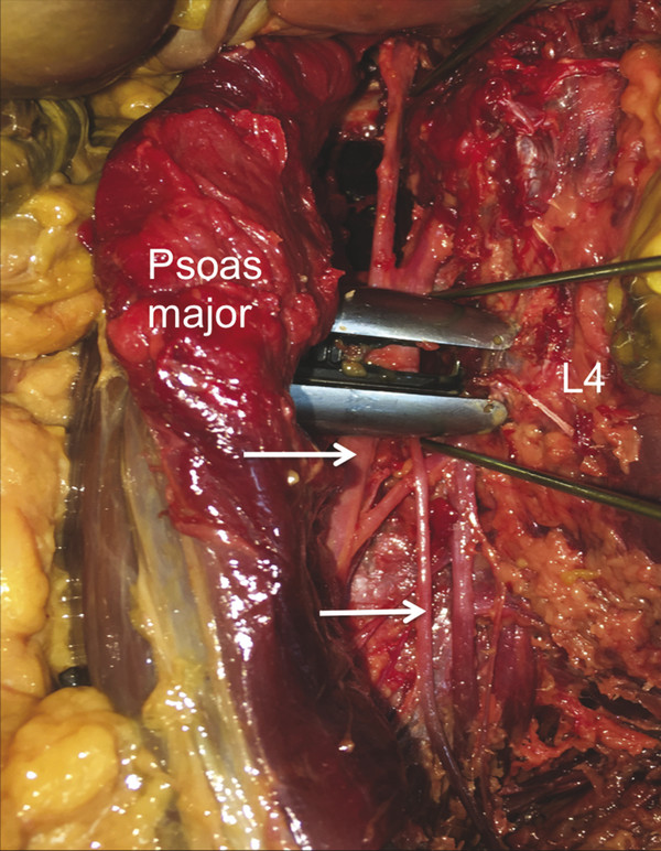 Anterior view of the right retroperitoneal space after a transpsoas, lateral approach to the L4 vertebra. The psoas major has been retracted laterally to illustrate the docking location placed under f