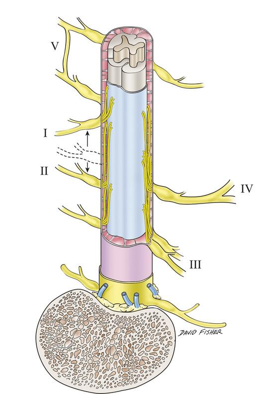 Postacchini et al classification: (I) cranial origin, (II) caudal origin (transverse root), (III) closely adjacent nerve roots, (IV) conjoined nerve root, (V) extradural anastomosis