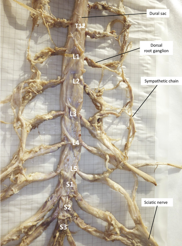Human dural sac, nerve root cuffs, roots of lumbar plexus, sacral plexus, and sympathetic chain at lumbar level. The dural sac appears flattened owing to loss of cerebrospinal fluid after dissection o