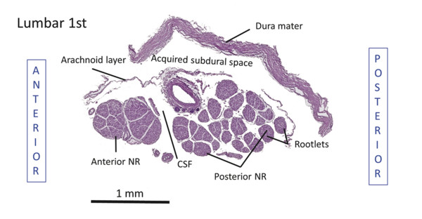 Transverse cross-section of nerve root cuff at first lumbar vertebral level. The anterior and posterior first lumbar nerve roots within the subarachnoid space precisely around the subarachnoid angle.